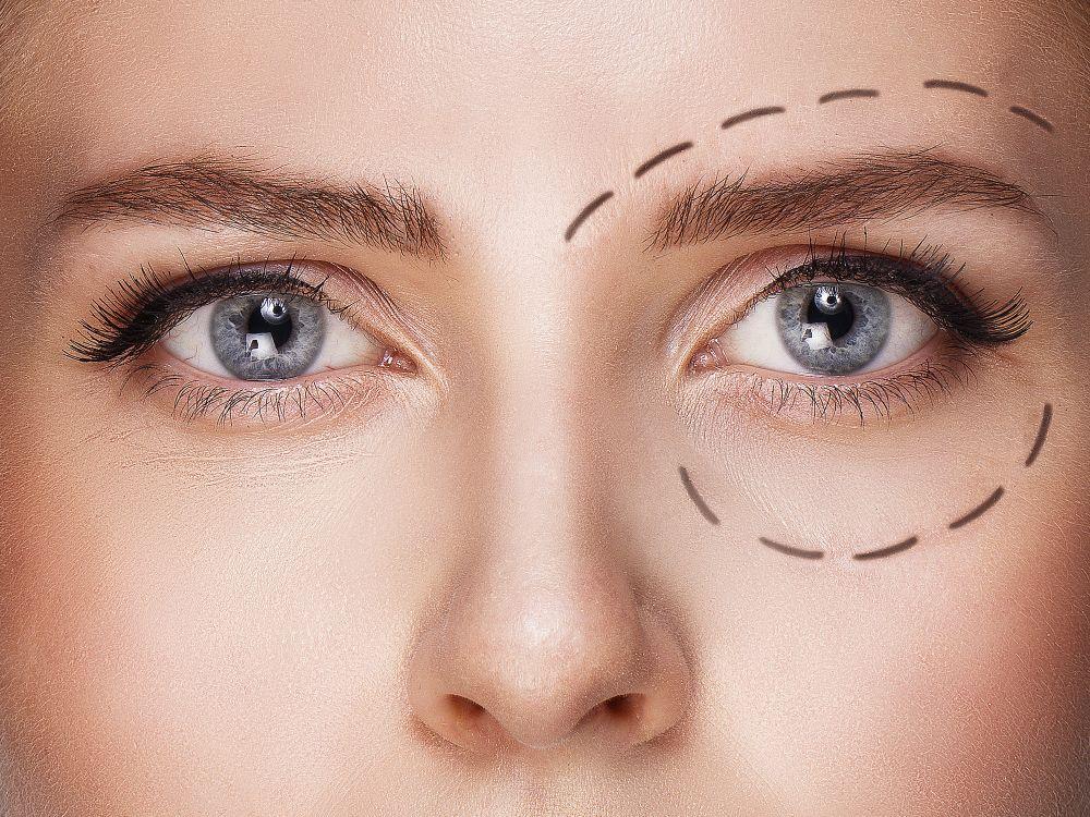 estetska hirurgija lepota