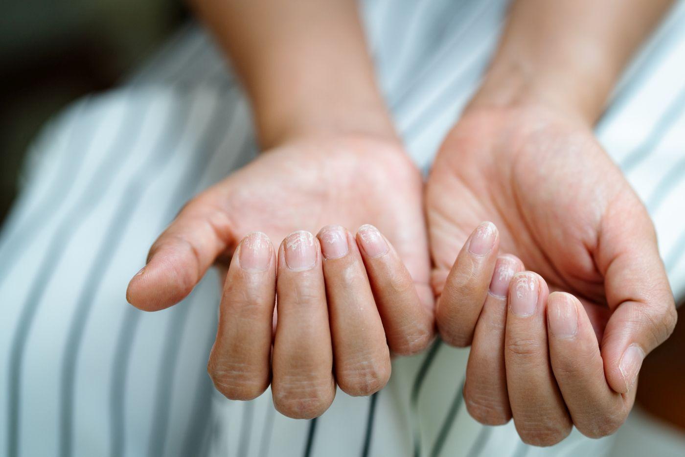 Oblik ruke