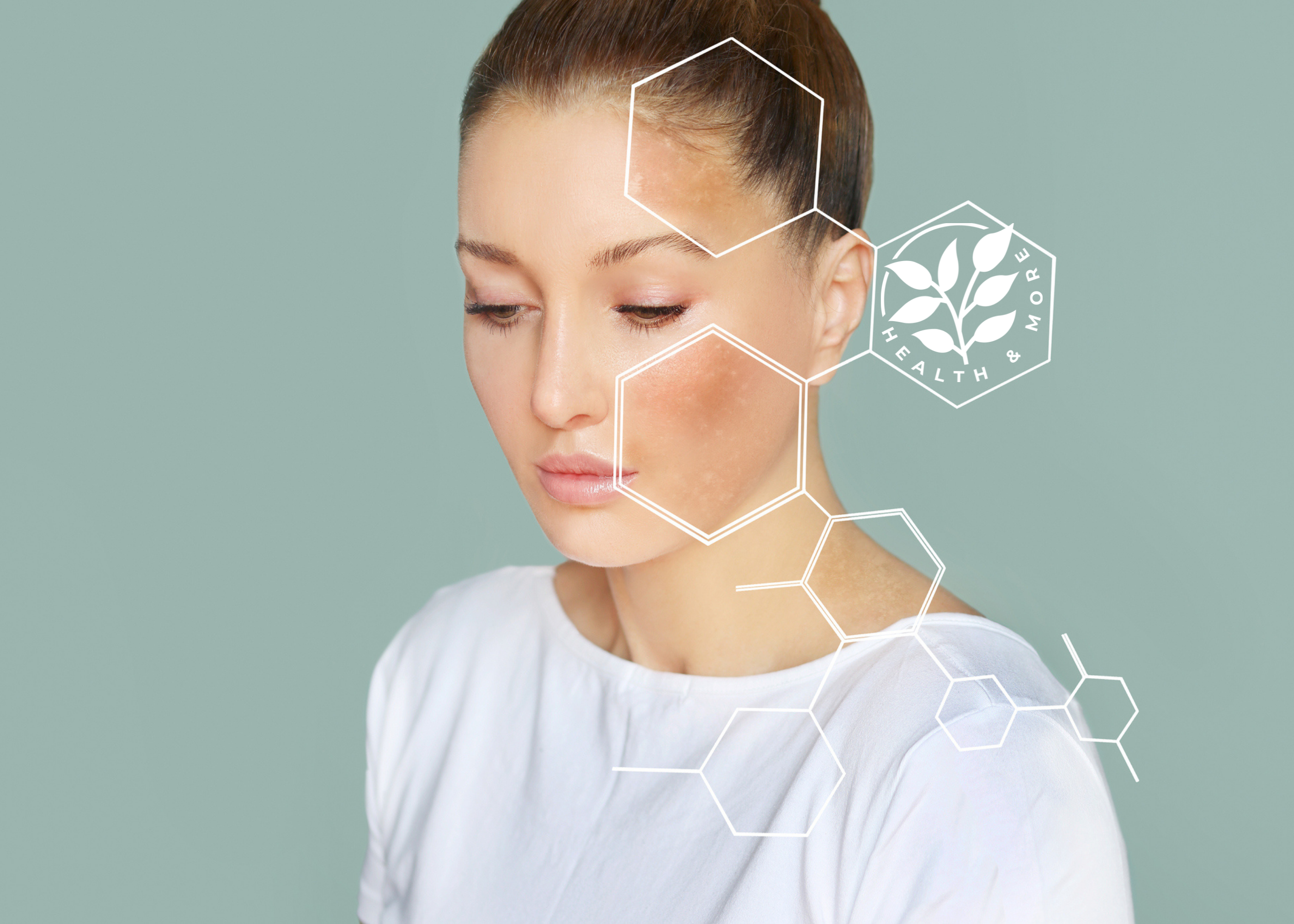 Prirodne metode za uklanjanje hiperpigmentacija
